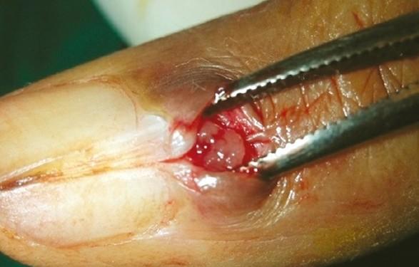 glomus tumor pictures 2