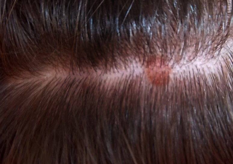 itchy bumps on scalp pictures 4
