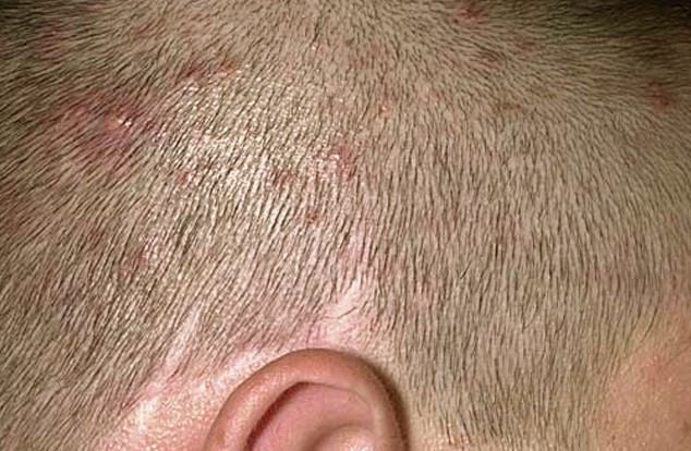 itchy bumps on scalp pictures