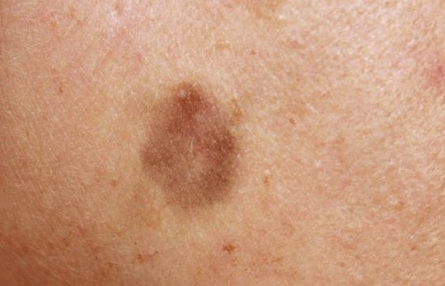 lichenoid keratosis pictures 3