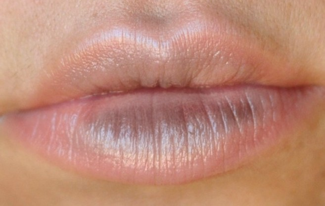 lip discoloration pictures