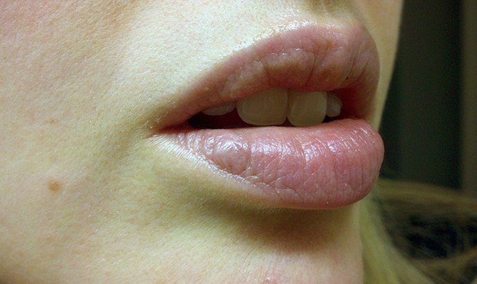 lip discoloration