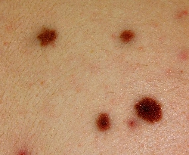 melanocytic nevus pictures 4