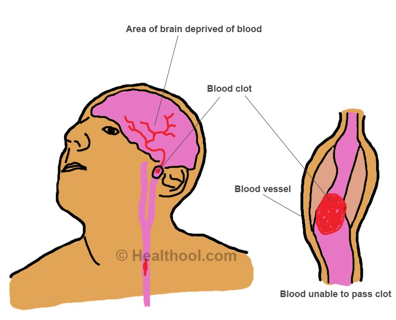 blood clots in the brain pictures