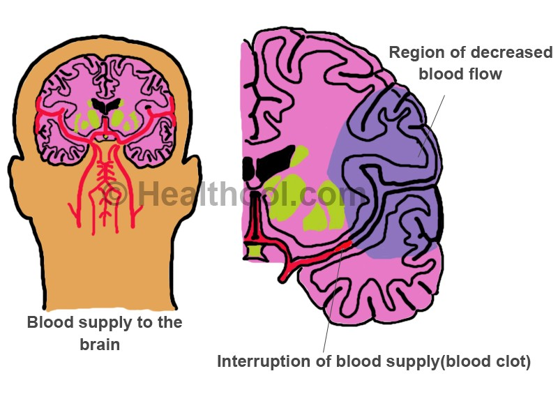 blood clots in the brain treatment