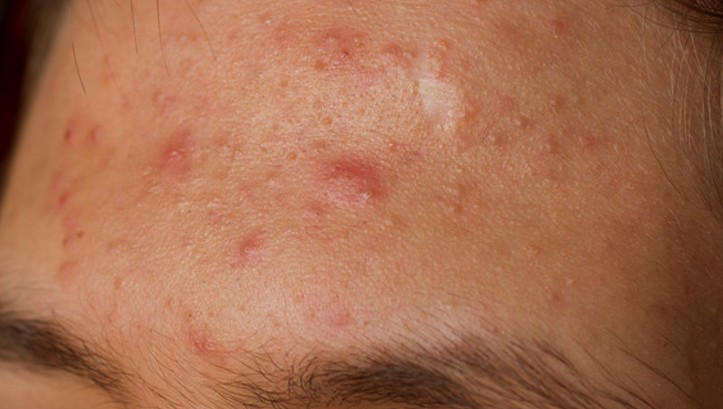 forehead acne pictures 2