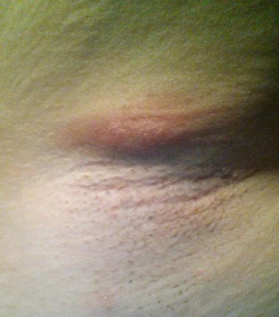 painful lump under the armpit