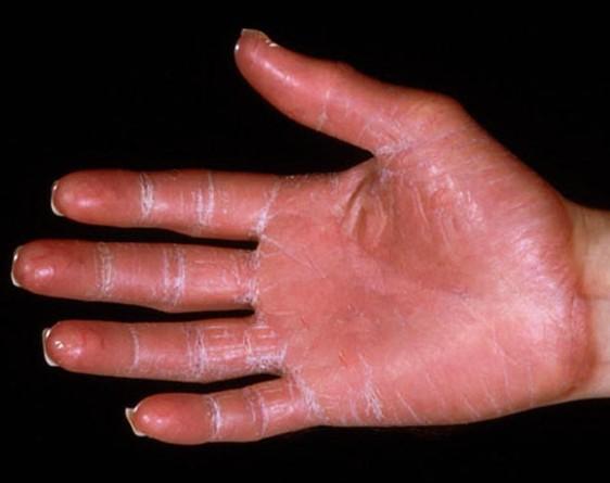 palmar erythema