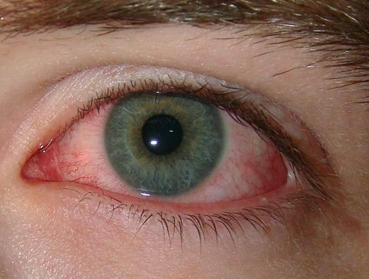 scratched eye