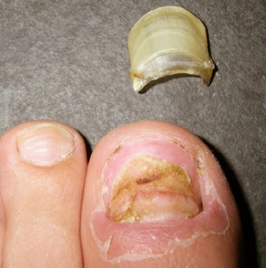 ▷ Toenail Falling Off - Symptoms, Causes and Treatment - (2019 ...