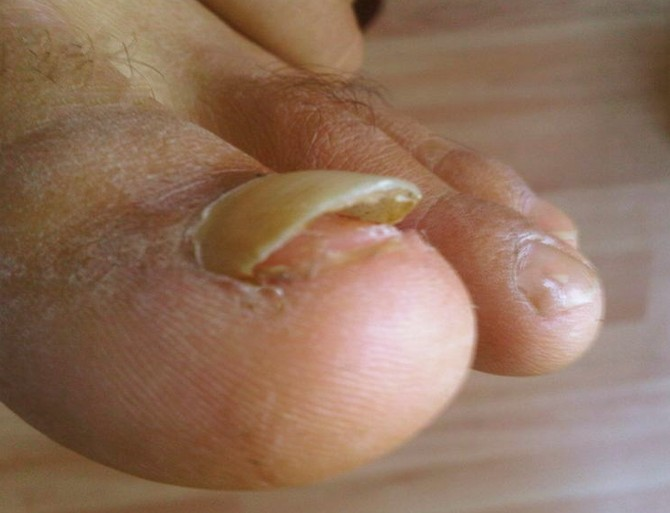 ▷ Toenail Falling Off - Symptoms, Causes and Treatment - (2018 ...