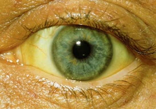 Yellowing Of The Eyes Causes Treatment Pictures