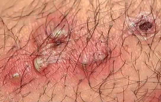 Infected vaginal hair