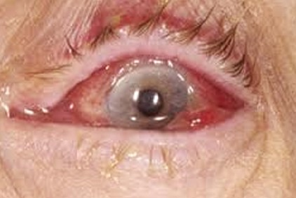 mucus in eye photo