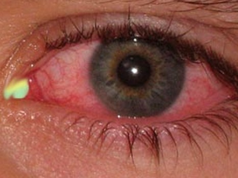 mucus in eye picture