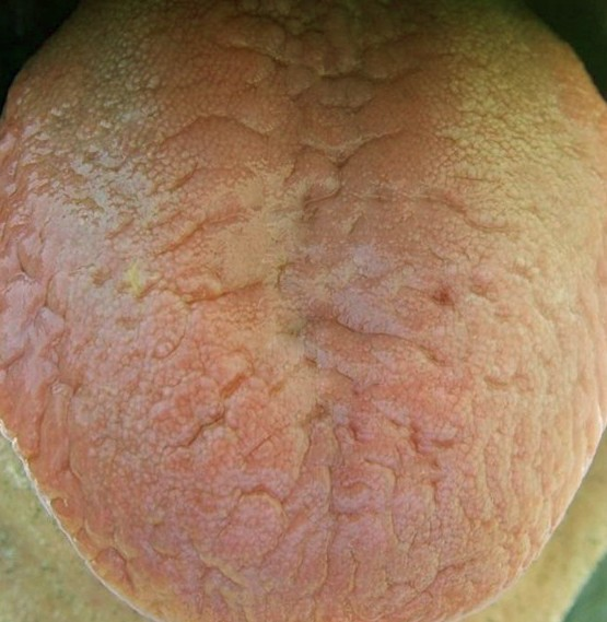 scrotal tongue image