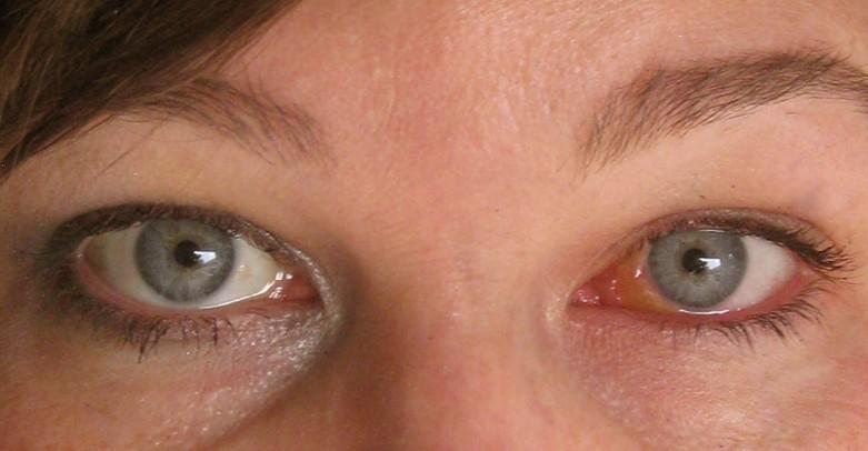 swollen eyeball pictures 2