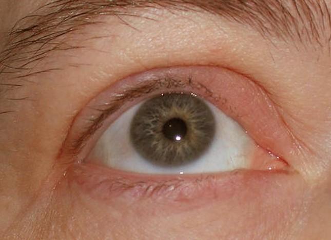 swollen eyeball