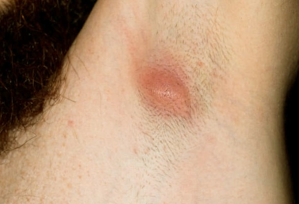 Underarm Cyst Symptoms Treatment Pictures Home