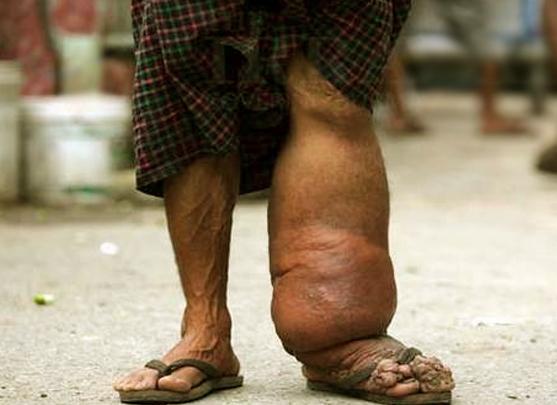 elephantitis-of-leg