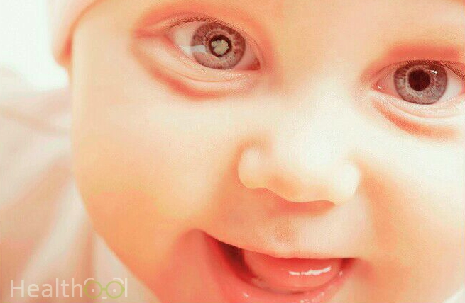 red-circles-around-eyes-in-infants