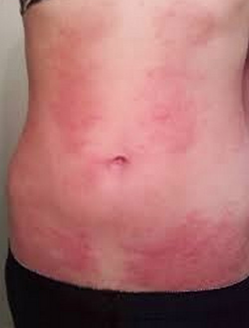 hiv rash - pictures (images), symptoms, on armpit, legs, face, Skeleton