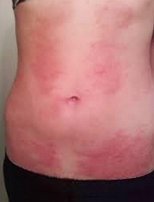 hiv rash - pictures (images), symptoms, on armpit, legs, face, Skeleton