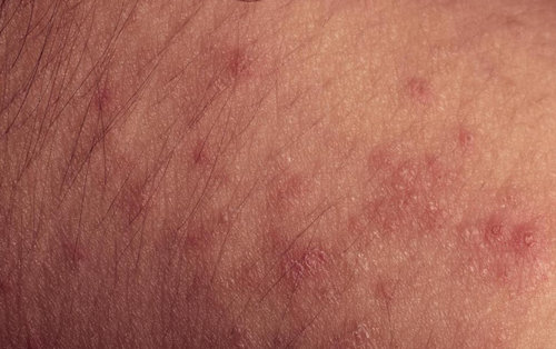 HIV rash on arms.picture