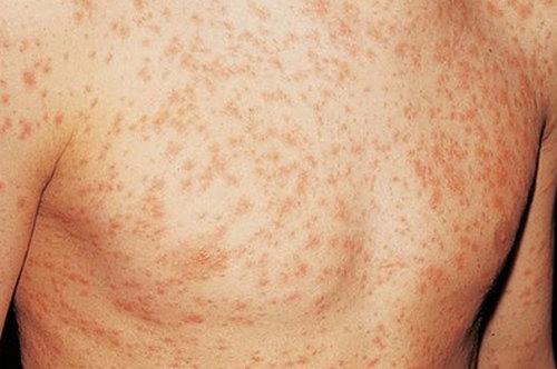 HIV rash on chest.image