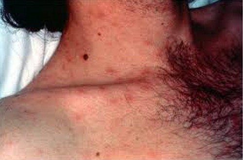 HIV rash on his neck.pcture