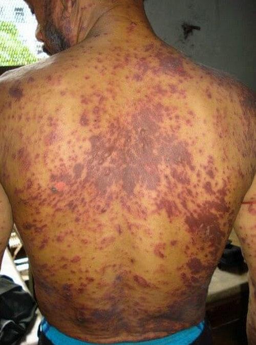 HIV rash on the black skin.picture