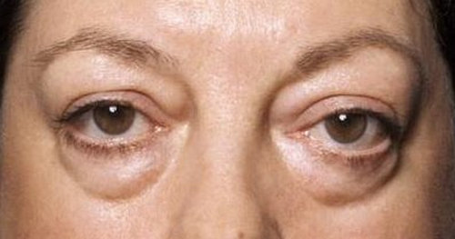 Swelling under the eye involving both left and right eye.picture