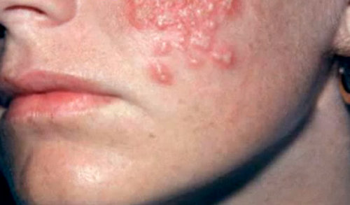 The blistery type of rash that can appear with HIV rash.photo