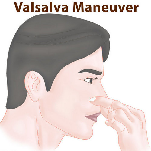 Valsalva maneuver.picture