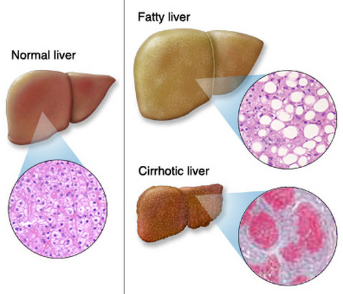 a great example of how the normal liver should look and even includes how the cells look under a microscope.photo