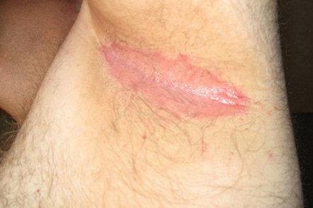 Hiv Rash Pictures Images Symptoms On Armpit Legs
