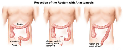 how the removal of the rectum will look.picture