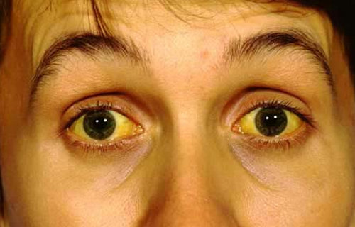 jaundice in the patient's eyes.photo
