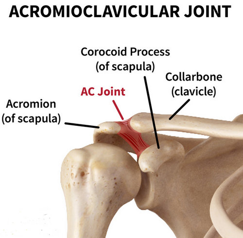 the AC joint and how it is connected to the collarbone.picture