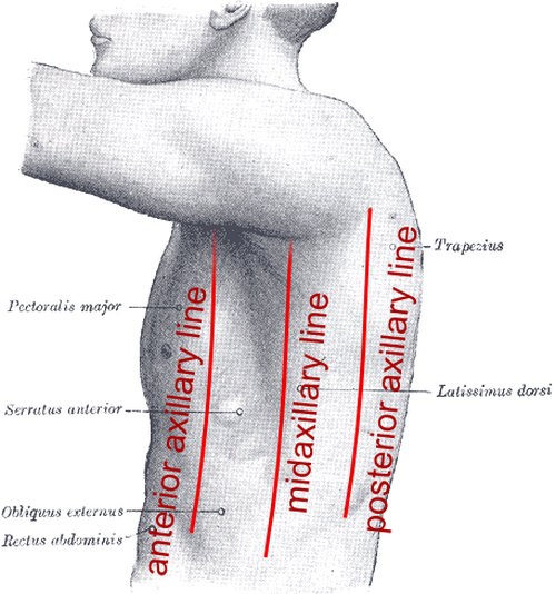 the areas in which the pain from splenic flexure may be felt.photo