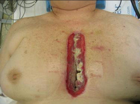 the opening in the sternal incision and the obviously infected tissue.picture