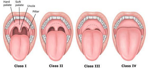 the positioning of the uvula and the soft pallet in different class distinctions of people with snoring issues.image