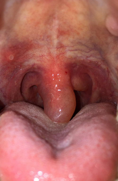 the uvula is swollen and red due to irritation from some cause.image