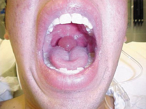 what a swollen uvula would look like.photo