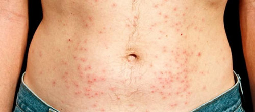 chlorine rash on the abdominal area or the stomach.picture