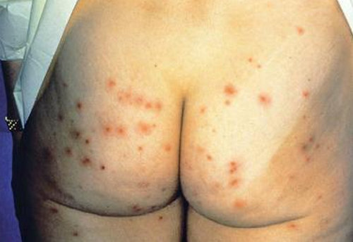 chlorine rash on the buttocks.photo