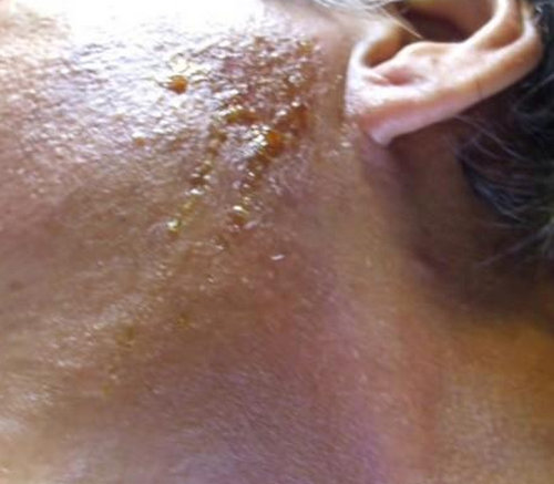 chlorine rash on the face near the ear.picture