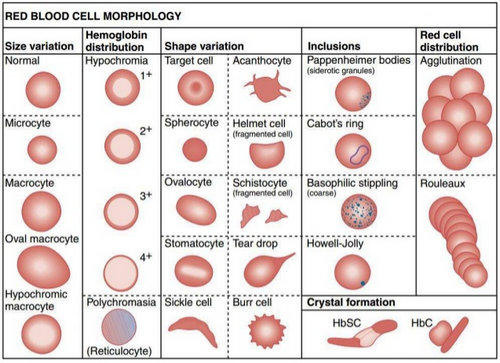An illustration of red blood cells detailing the variation in size, shape, haemoglobin distribution, inclusions, and red cell distribution.photo
