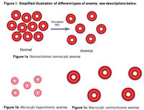 An image that shows a simplified illustration of various types of anemia.image