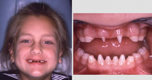 A clinical manifestation of a female patient with osteogenesis imperfecta.image